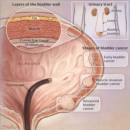 <title>Atezolizumab Monotherapy for Patients With Metastatic Urothelial Cancer</title>