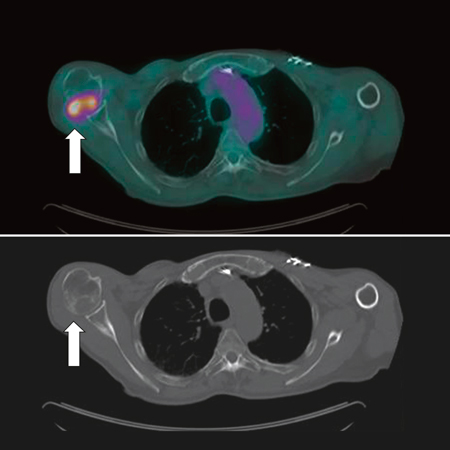 <title>Single-Fraction Stereotactic vs Multifraction Radiotherapy for Pain Relief in Patients With Nonspine Bone Metastases</title>