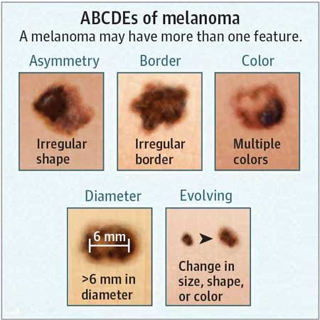 Association of Delays in Surgery for Melanoma With Insurance Type