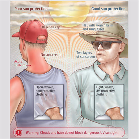 Review of Sun Protection in Adults and Children