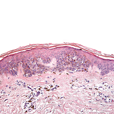 <title>Risk of Melanoma in Moderately Dysplastic Nevi Excisionally Biopsied but With Positive Margins</title>