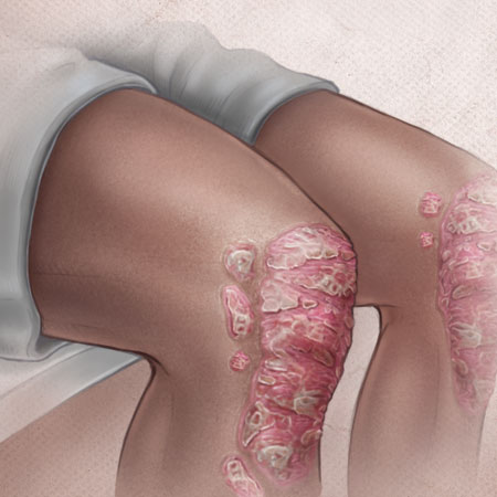 <title>Psoriasis</title>