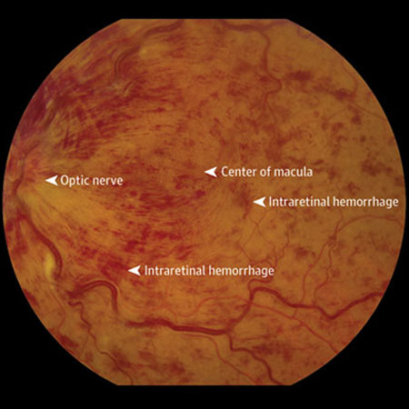 <title>Monthly vs Treat-and-Extend Anti-VEGF Regimens After 6 Months of Treatment for Macular Edema From Retinal Vein Occlusion</title>