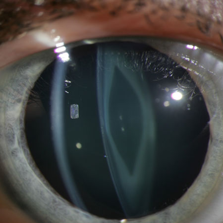 <title>Visual Acuity and Ophthalmic Outcomes in the Year After Cataract Surgery Among Children</title>