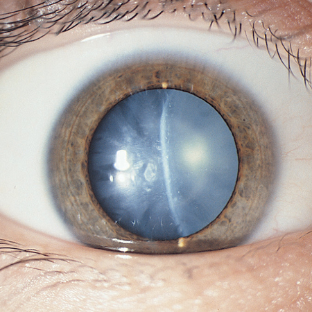<title>Preoperative Disclosure of Resident Roles in Cataract Surgery in Teaching Centers</title>