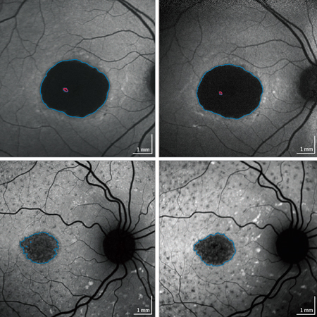 <title>Progression of Stargardt Disease as Determined by Fundus Autofluorescence Over a 12-Month Period</title>