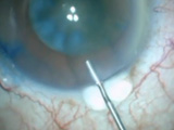 Shortening a Long Clear Corneal Incision