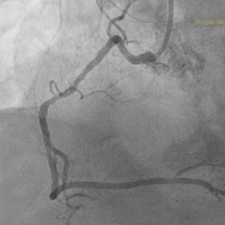 Selective Right Coronary Angiography