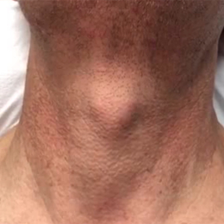 Technique for Lower Face and Neck Tightening With FaceTite