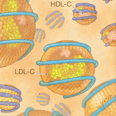 <title>Low-density Lipoprotein Cholesterol by Martin/Hopkins, Friedewald, and Preparative Ultracentrifugation Methods</title>