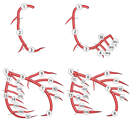 <title>Coronary Anatomical Complexity and Clinical Outcomes After Percutaneous or Surgical Revascularization</title>