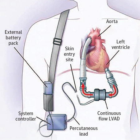 <title>Evolution of Left Ventricular Assist Device Therapy for Advanced Heart Failure</title>