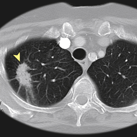 Evaluating Shared Decision Making for Lung Cancer Screening