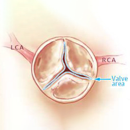Changes in Functional Status in the Year After Aortic Valve Replacement