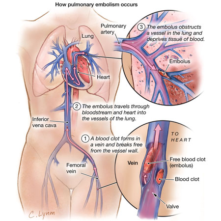 <title>Prevalence of Pulmonary Embolism in Patients With Syncope</title>
