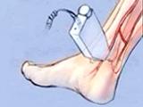 Doppler Auscultation of the Posterior Tibial Artery