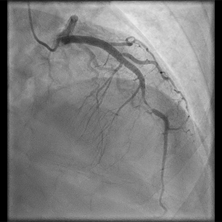 Right Anterior Oblique (RAO) Cranial Angiography in a 36-Year-Old Woman