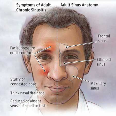 <title>Diagnosis and First-Line Treatment of Chronic Sinusitis</title>