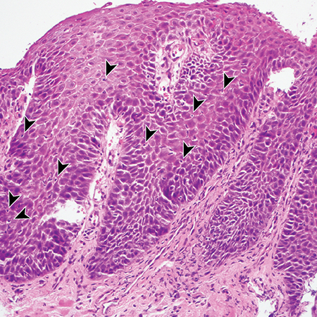 Histologic Changes in the Esophagus in Patients With GERD