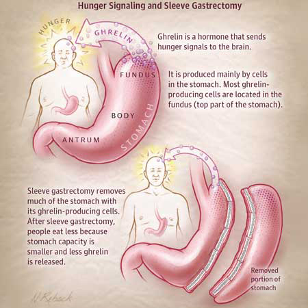 <title>Gastric Sleeve Resection for Obesity: How good Is It?</title>