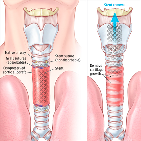 Replacing the Trachea: An Exciting New Procedure; But How Do We Know It Really Works?