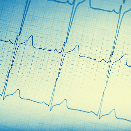 <title>When Will It Stop? Clinicians Are Still Ordering Routine ECGs Despite Recommendations to the Contrary</title>