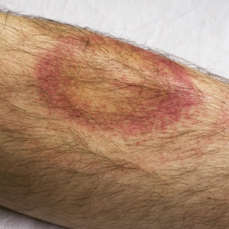 <title>Treating Lyme Disease in 2018, Part 1</title>