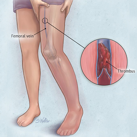 <title>An Update on the Diagnosis and Treatment of Venous Thromboembolic Disease</title>