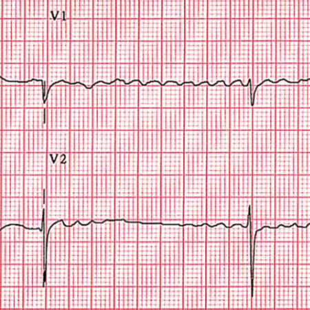 Update On Atrial Fibrillation Review Of The New Aha Acc Hrs