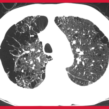 Ambient Air Pollution and Change in Emphysema and Lung Function