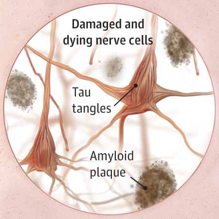 <title>Alzheimer Disease Overview and the Possibility That It's Caused By Infections</title>