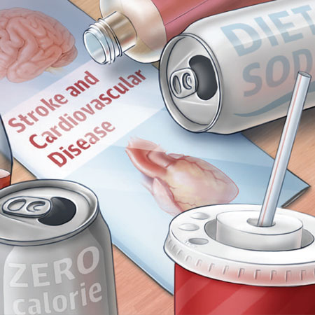 Unpacking A Recent Study Linking Diet Soda With Stroke Risks