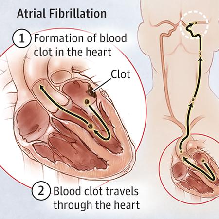 <title>Stroke Prevention in Atrial Fibrillation</title>