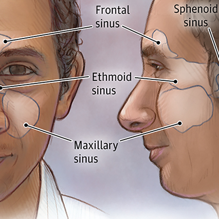 <title>Treating Chronic Sinusitis in Adults</title>