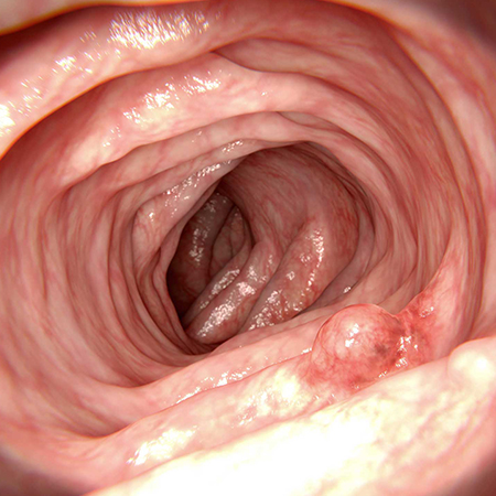 <title>Screening for Colorectal Cancer</title>