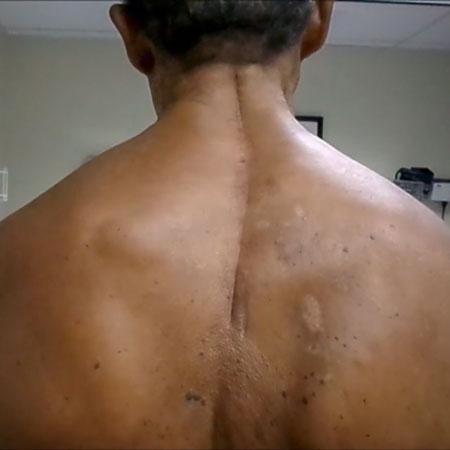 Semirhythmic, Semicircular Movements of Head, Neck, Left Shoulder, and Scapular Regions
