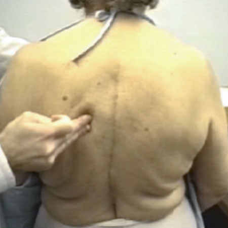 Semirhythmic, Semicircular, Writhing Contractions of the Dorsal Region While Standing