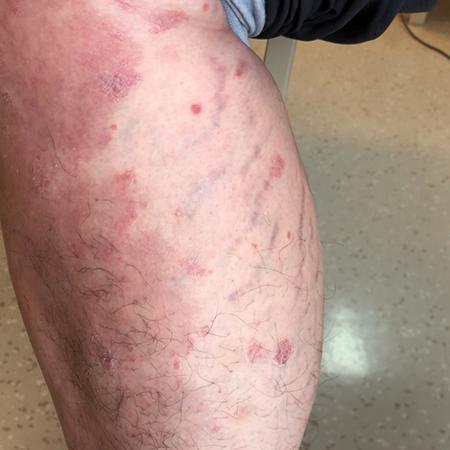 Patient's Right Leg Before Treatment
