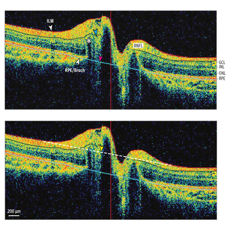 Association of Retinal Nerve Fiber Layer Thinning With Current and Future Cognitive Decline
