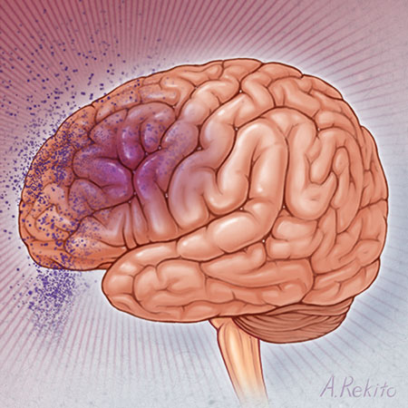 <title>Association Between Statin Use and Risk of Dementia After a Concussion</title>