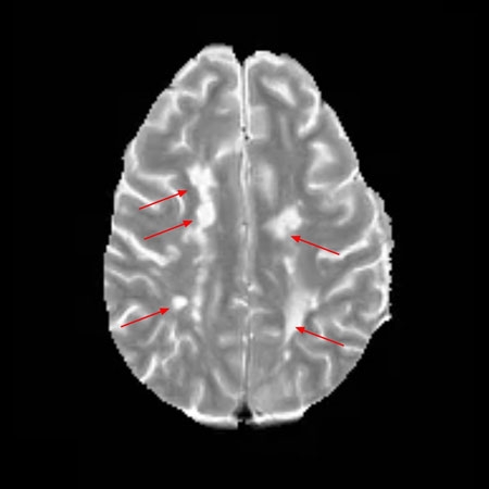 Time-lapse Magnetic Resonance Imaging (MRI) From a Patient With Multiple Sclerosis (MS) and Expanding Rim Lesions Characterized Neuropathologically at Autopsy