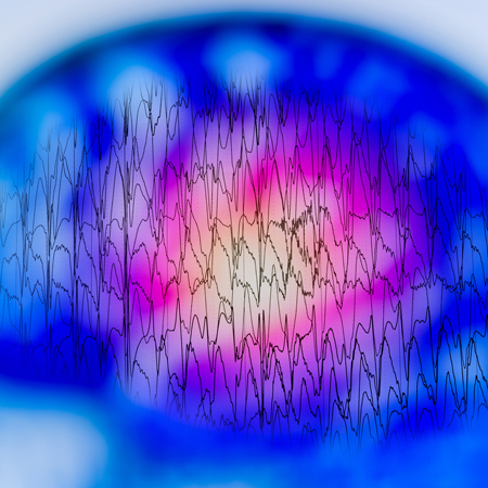 <title>Interrater Reliability of Experts in Identifying Interictal Epileptiform Discharges in EEGs</title>