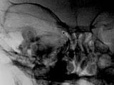 Success of Intra-arterial Chemotherapy (Chemosurgery) for Retinoblastoma: Effect of Orbitovascular Anatomy Part 1