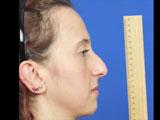 Step-by-Step Precision Profileplasty
