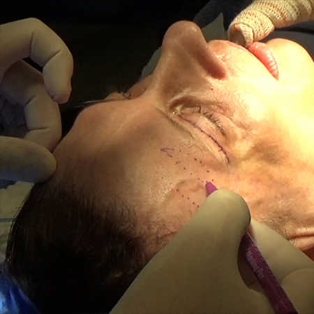 Eyebrow-lift With Frontal Muscle Plication Technique