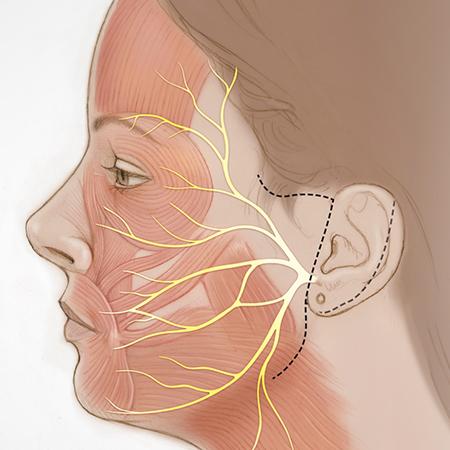 Dual Nerve Transfer for Facial Reanimation