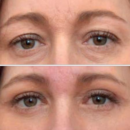 <title>Brassiere Suture Technique in Upper Eyelid Blepharoplasty</title>