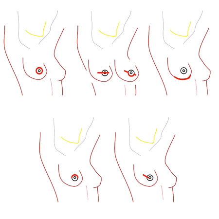 <title>Long-term Patient-Reported Outcomes in Postmastectomy Breast Reconstruction</title>