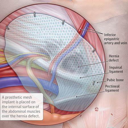 Effectiveness of Prophylactic Intraperitoneal Mesh Implantation for Prevention of Incisional Hernia