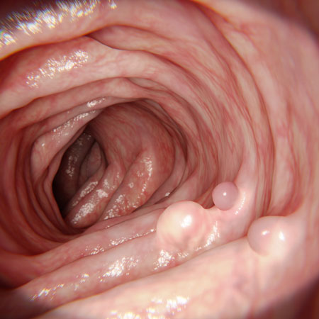 Association of Adenoma and Polyp Detection Rates With Endoscopist Characteristics